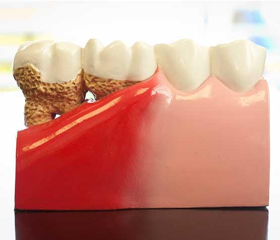 Gum Disease Model | Peace Periodontics