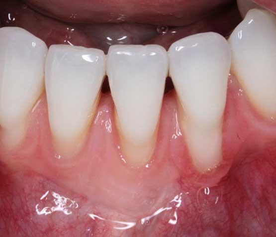 Gum Grafting Before | Peace Periodontics