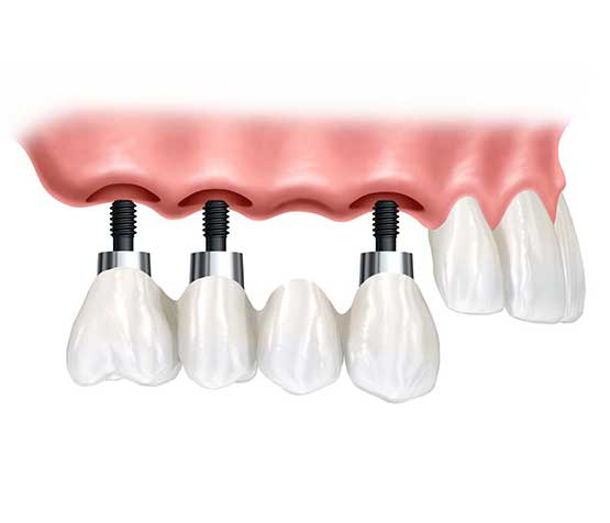 Implant Supported Bridge | Peace Periodontics