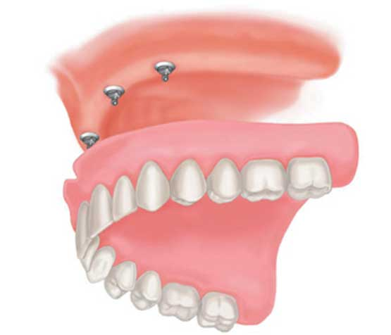 Implant Supported Denture | Peace Periodontics