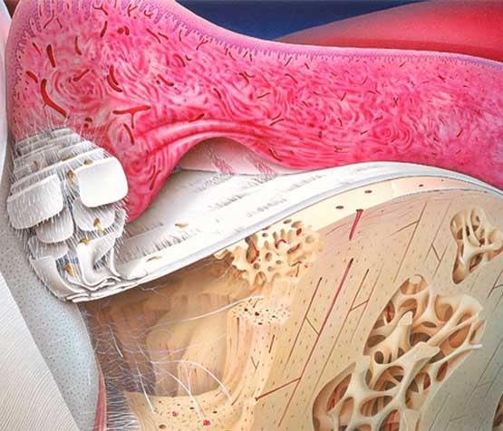 Periodontal Bone Loss | Peace Periodontics