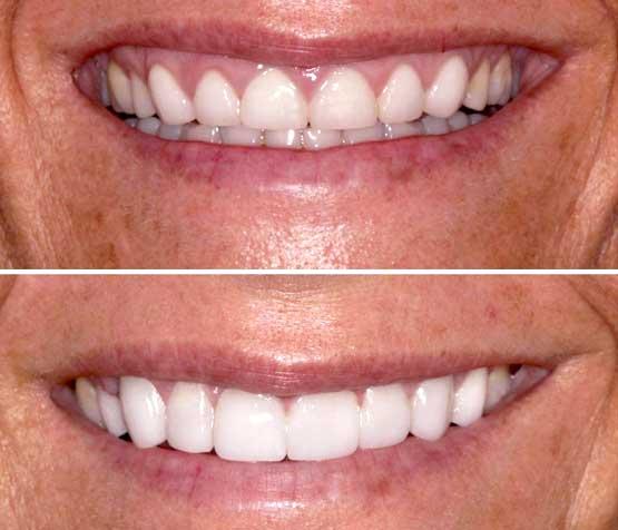 periodontal-plastic-surgery