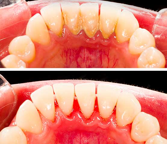 Scaling Before and After | Peace Periodontics