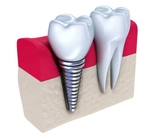 Single Tooth Dental Implant | Peace Periodontics